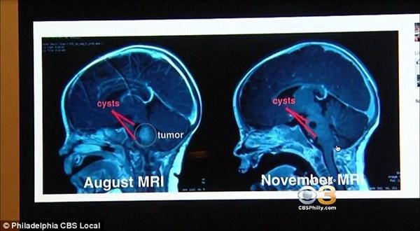 神からの贈り物? ローマ教皇がキスをした脳腫瘍の女の子、なんと腫瘍が縮小!