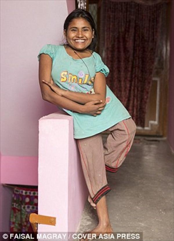 重度の脊柱側弯症により背骨がねじれた少女 手術を受けられることが決定!
