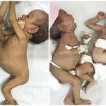 結合双生児(シャム双生児)のジャナットとマナット、無事に分離手術成功!