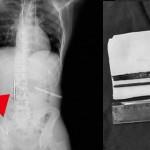 賭けで12センチの釘を飲み込んだ男 数日後、胃に釘が刺さり大手術→結果赤字