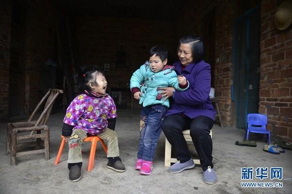見た目は3歳! 成長が止まってしまった中国の15歳の少女