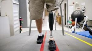 数ヶ月以内に米国初のペニスの移植手術実施へ! 戦争による負傷兵が主な対象