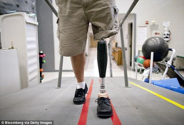 数ヶ月以内に米国初のペニスの移植手術実施へ! アフガン戦争負傷兵が主な対象