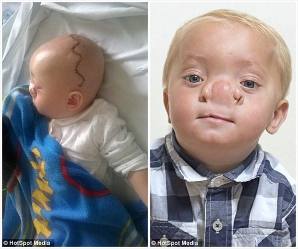 ピノキオを呼ばれる男の子 大きな鼻の原因は頭蓋骨の隙間による脳ヘルニア