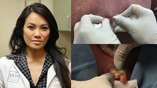 皮膚科医がニキビを潰す動画だけのYouTubeチャンネル開設!何故か大人気