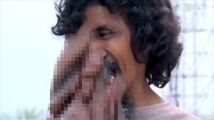 象の鼻を持つ男 ガネーシャ神として崇められるが、治療は不可能か