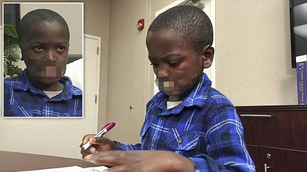 チンパンジーに襲われて唇を失った少年 アメリカで再建手術へ!