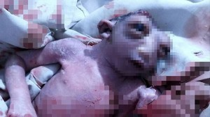 無脳症!? インドでショッキングな状態の赤ちゃんが誕生する