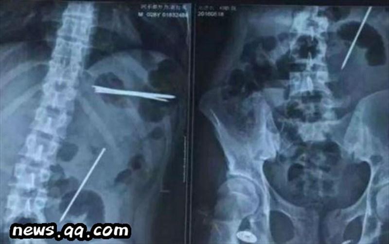 見栄っ張りの中国人男性、五寸釘を8本飲み込み死にかける!