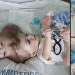 脳がつながった状態で生まれた結合双生児、20時間に渡る手術で分離成功
