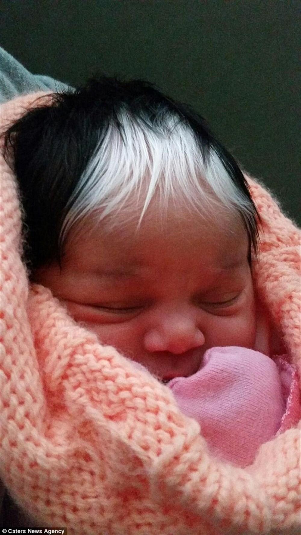 なんと親子4世代に渡って遺伝!白斑によって白髪の前髪を持って生まれた少女
