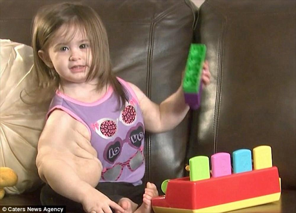 遺伝子変異により腕が肥大!「ベビーハルク」と呼ばれる女の子