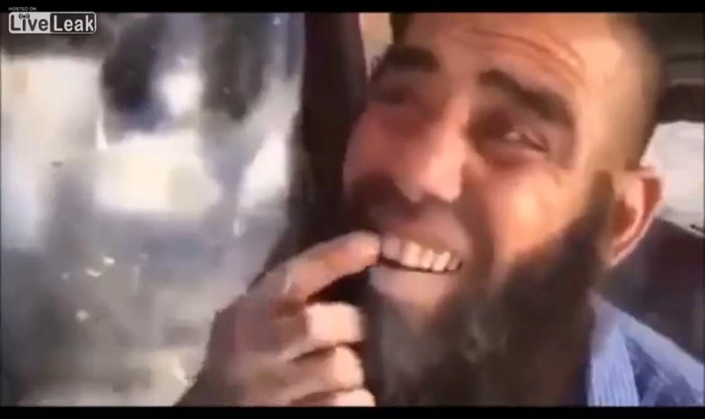 ちまついたホワイトニングなんてしゃらくせぇ!車用研磨機で歯を白くする男