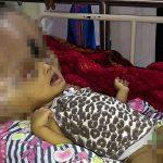 水頭症の少年を救え! 世界最大の頭を持つインドの少年