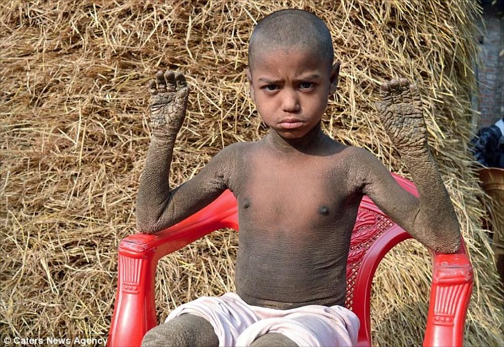 全身が石化するバングラディッシュの8歳の少年