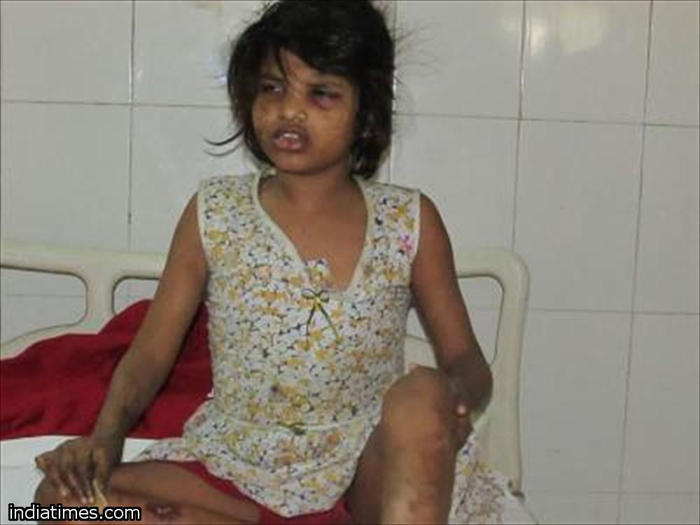 【モーグリ―・ガール】インドでサルと暮らしていた少女が保護される