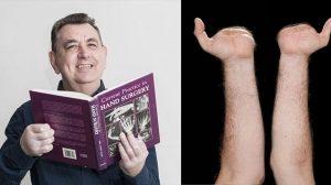 英国初の両手移植患者、術後わずか8か月で手紙を書けるまでに回復