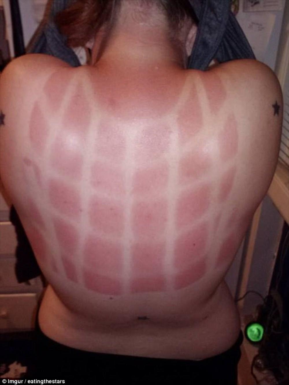 【夏に浮かれ過ぎた末路】 紫外線に負けた人々のとんでもない日焼け 20選