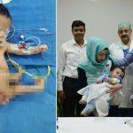 8本の手足を持って生まれたポリメリアの男の子 三度にわたる手術で分離に成功