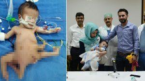 8本の手足を持って生まれたポリメリアの男の子 三度にわたる手術で除去成功
