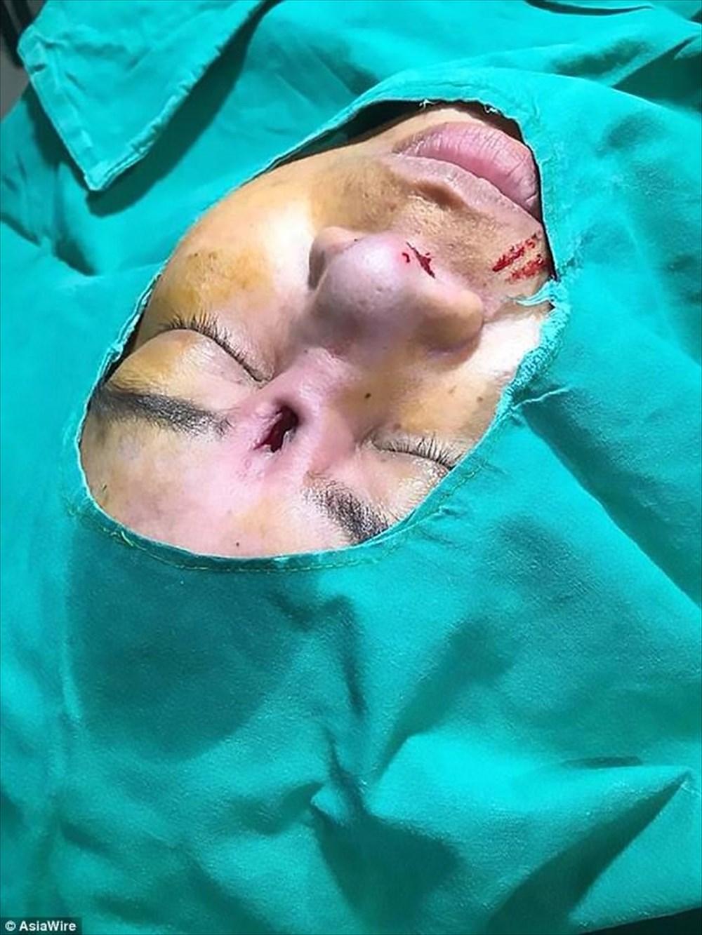 クリニックは知らんぷり!美容整形で鼻に埋めたインプラントが飛び出てきた女性